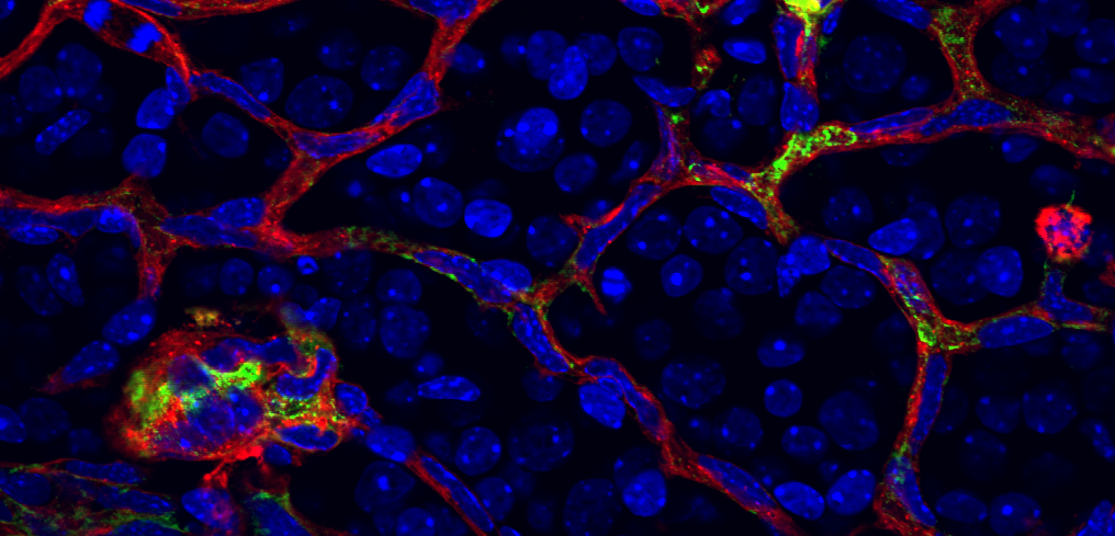 Angio5_Sapieha Cell Met2